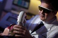 depilacja laserem
